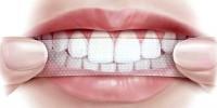 Отбеливающие полоски для зубов: особенности