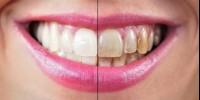 Почему зубы темнеют?